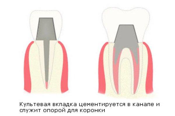 съемные виниры на зубы заказать