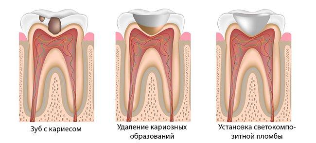 Den-klinik ru Постановка пломбы - YouTube