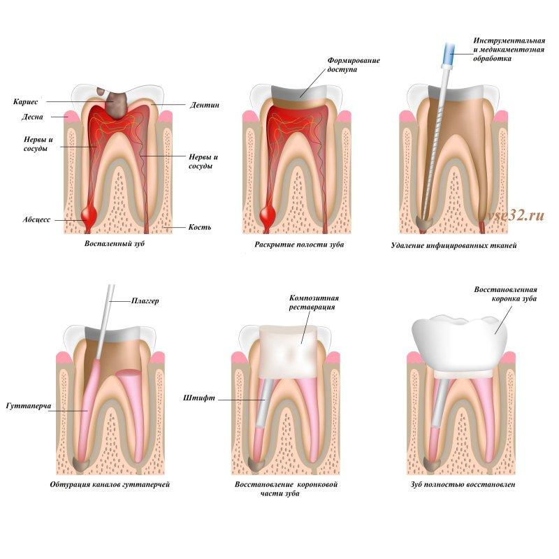 зачем делают снимки зубов