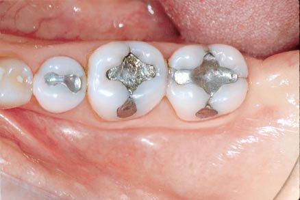 Пломба (стоматология) — Википедия